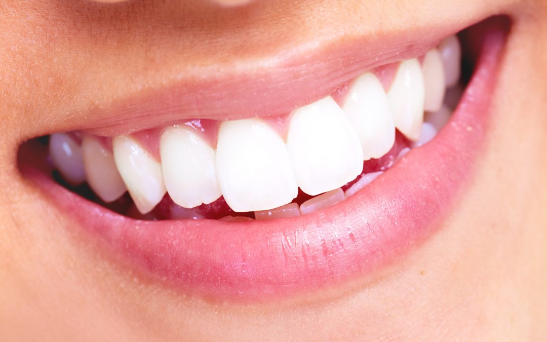 Smile Whiter and Wider! 7 Benefits of Professional Teeth Whitening